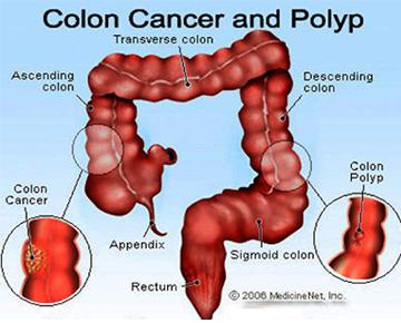 2-CancerColon